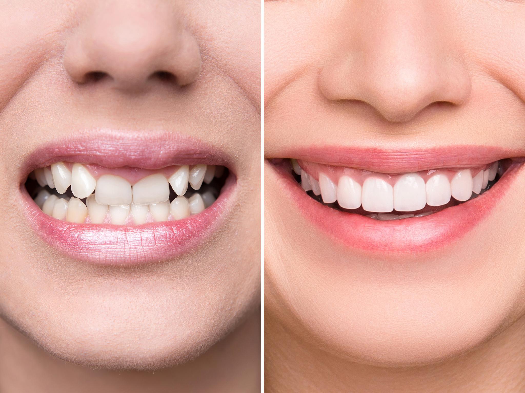 lente-de-contato-dental-antes-e-depois-02
